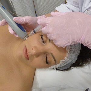 mesoterapia o electroporación