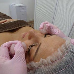 Tratamiento antiojeras